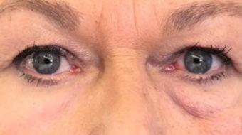'Second Skin' May Reduce Wrinkles, Eyebags, Scientists Say