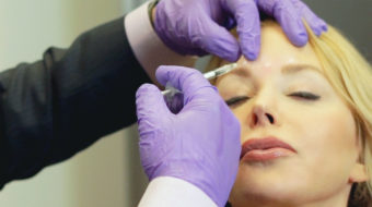 BOTOX Do's & Don'ts