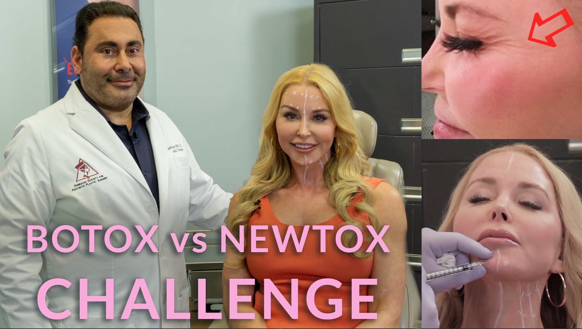 botox vs newtox